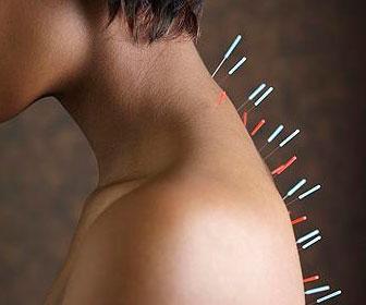 Иглотерапия - лечение иглоукалыванием