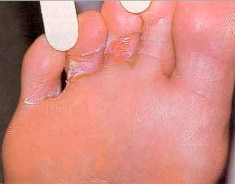 Межпальцевый грибок на ногах