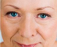 О каких проблемах говорят морщины вокруг глаз