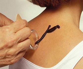 Гирудотерапия (лечение пиявками) при мастопатии