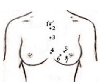 Точки постановки пиявок при мастопатии