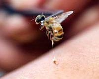 Аллергия на укусы насекомых