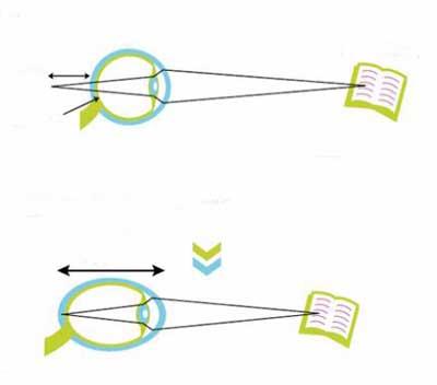 Как развивается близорукость
