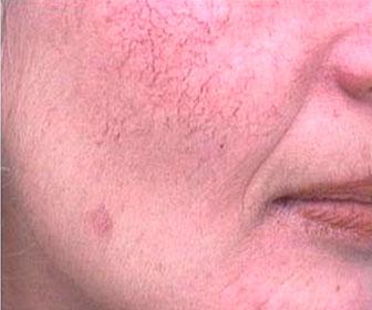 Капиллярная сетка на лице