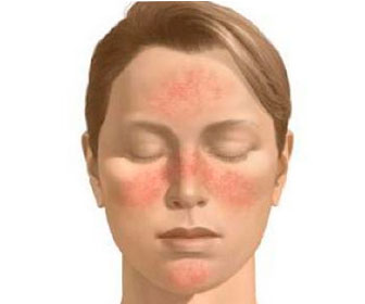 Красные пятна на коже лица