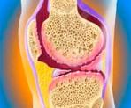 Причины развития артрита у современного человека