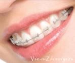 Брекеты, которые незаметны на зубах